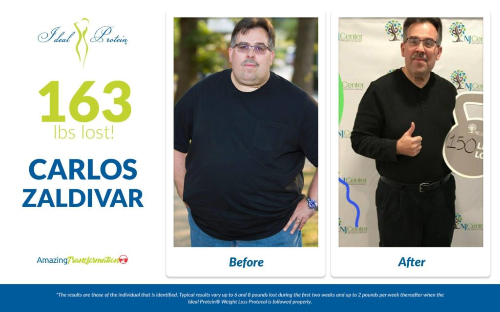carlos zaldivar before after 1024x640